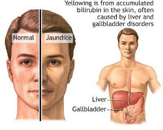 Juwita Blog: Health Tips Facts- Jaundice Symptoms,Home ...