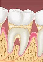 [periodontite.jpg]