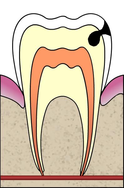 [carie+dentaria.png]