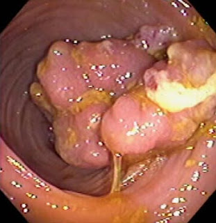 Colon Cancer Symptoms Colon Cancer Symptoms How To Know If You Have Colorectal Cancer