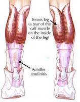 Do parte músculo panturrilha da de trás