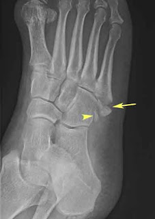Bone on the Outside of the Foot Sticks Out