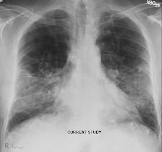 Pneumonia Natural Treatment Fig Bay Leaf