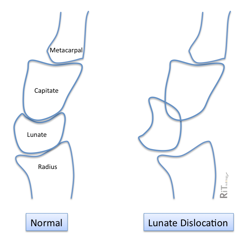 RiT radiology: Lunate ... Lunate Dislocation