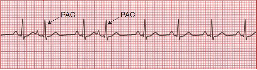 Retrograde P waves resolved ECG Pinterest - contract proposal template free