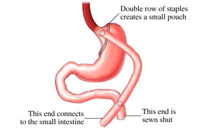 Operaciones estomago para adelgazar