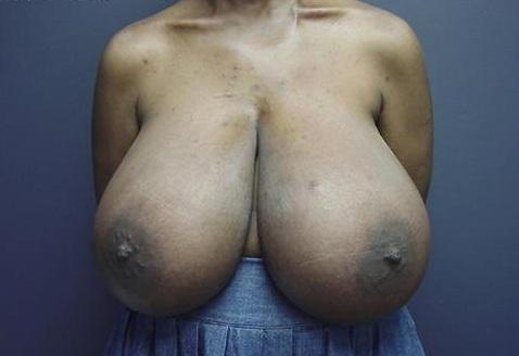 french women with macromastia
