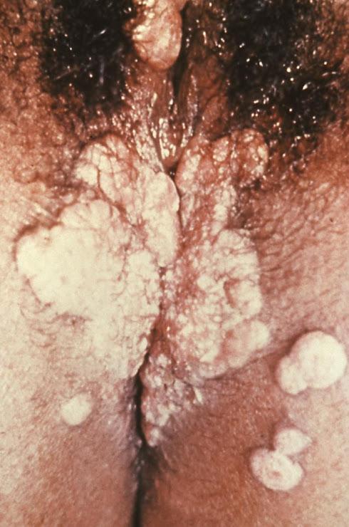Sifilis Vaginal