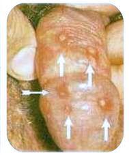 Herpes en el Pene