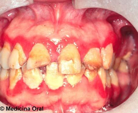 Sifilis en la boca