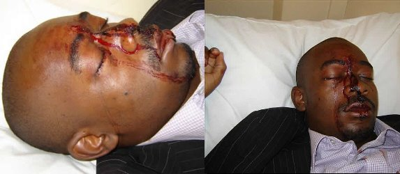 ZANU STEPS UP VIOLENCE IN CHIPINGE!