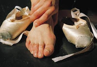 picblog - Bunions & Cracked Heels