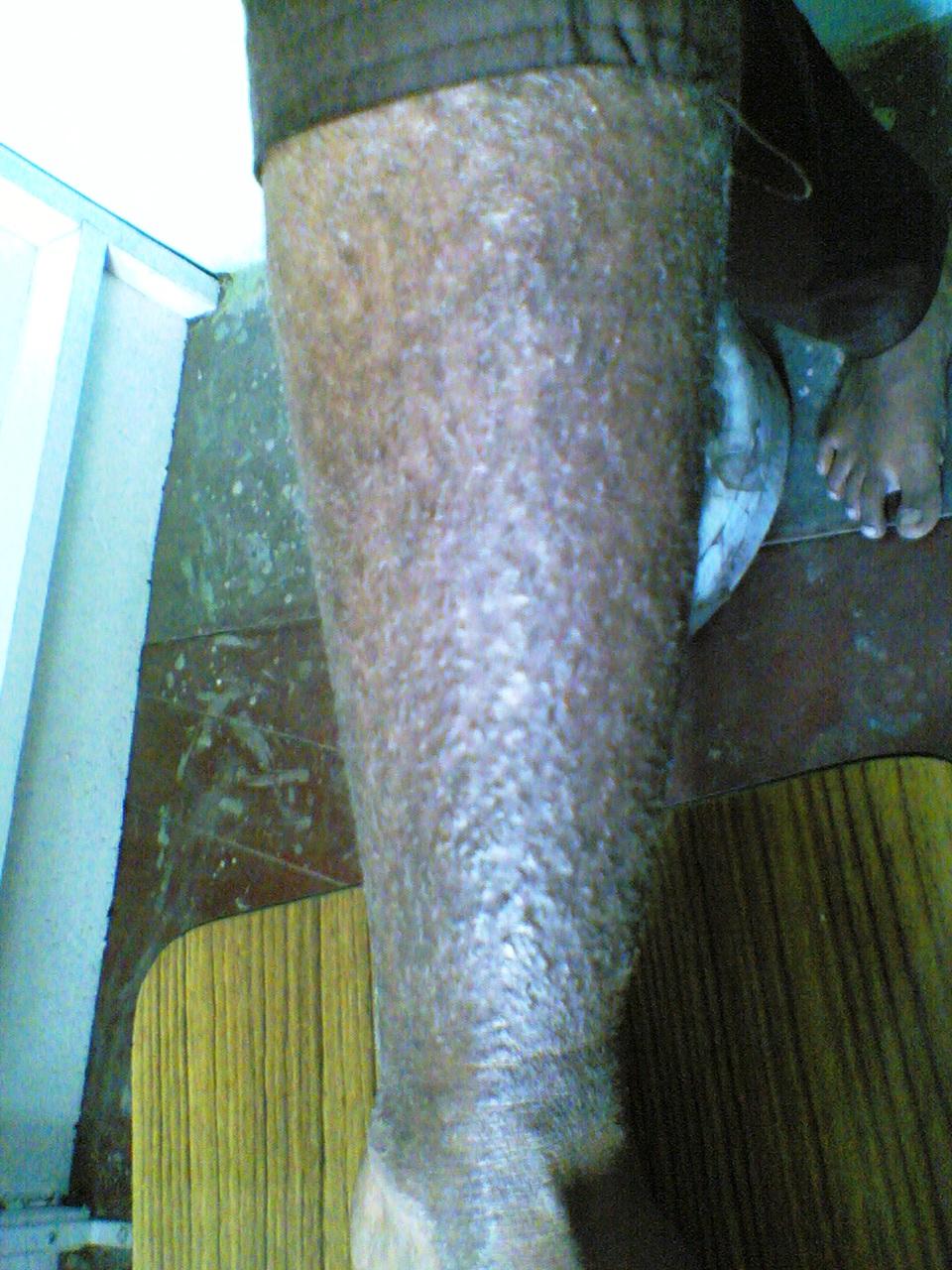 1-atopic dermatitis1- before treatment