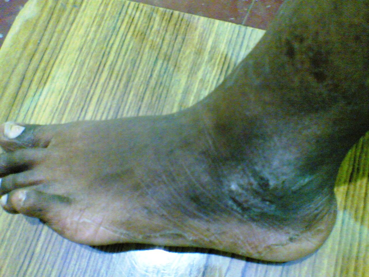1-atopic dermatitis1- During treatment