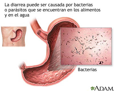 sintomas de virus estomacales