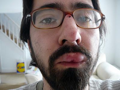 swollen lip piercings. Lip swelling Images