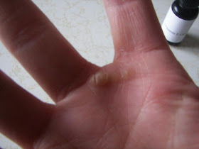 Affectioknit Natural Wart Removal It Worked For Me