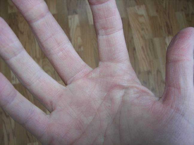 Vitamin A Warts Therapy
