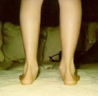 Flat Feet (Pes Planus Or Fallen Arches)