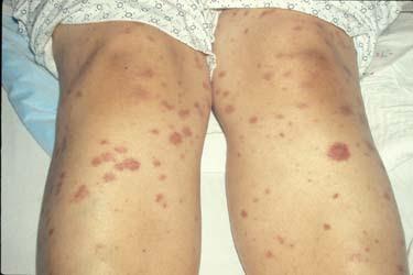 Meningococcal Infection Rash | Hairrs us