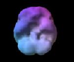 Imagem de um cerebro normal em descanso