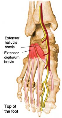 top of foot pain tendonitis