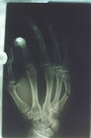 fractured hand xray