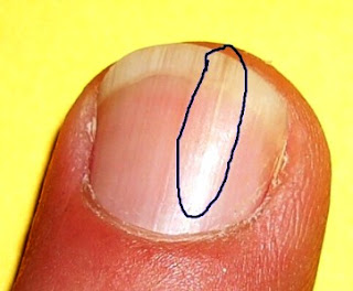 Why do fingernails split vertically? | Reference.com