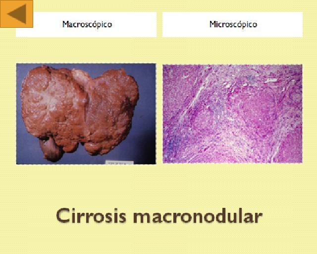 Cirrosis macronodular