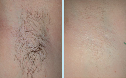 Hair Removal Today: Waxing As A Hair Removal Method - part 2