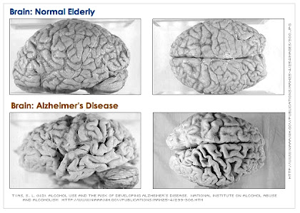 "Beta Amyloid plaque on the alzheimer""s brain"