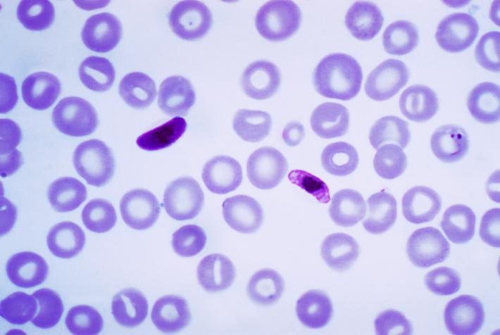 Np Name 3d Wallpaper Blog De Jessica Y Anabel La Malaria Por Plasmodium Falciparum