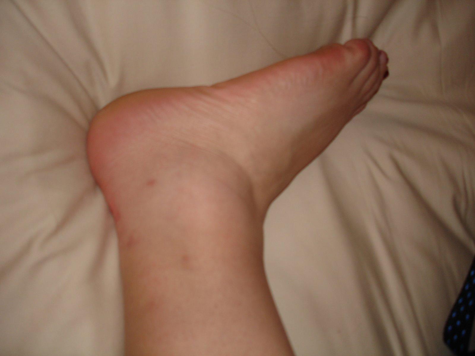 [ankle.jpg]