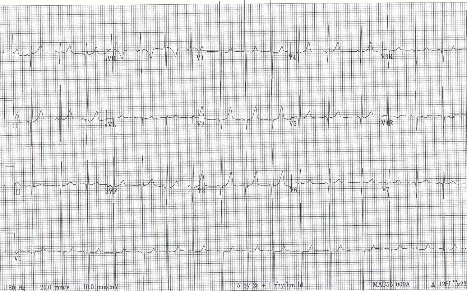 Pedi Cardiology Ekg Dextrocardia Vs Dextroversion