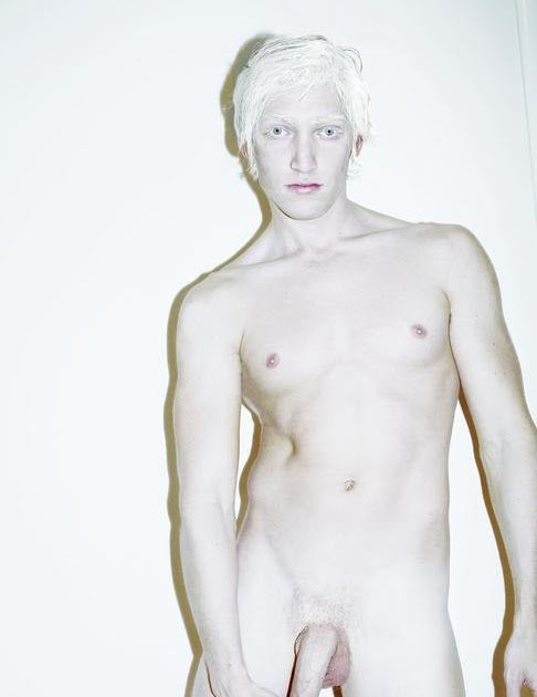 Albino black men naked