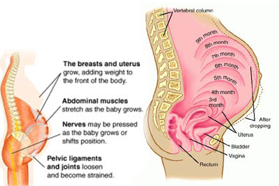 Beauty Tips: Causes of Back Pain During Pregnancy