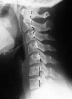 Cervical Kyphosis Treatment Los Angeles How To Fix Your Kyphosis