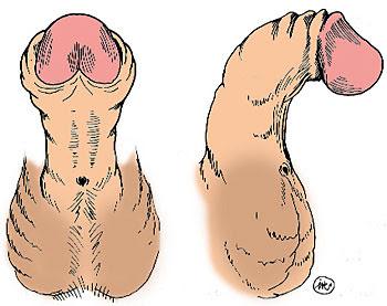 malformaciones del pene
