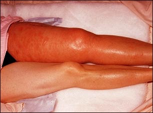 Grave profunda es trombosis venosa