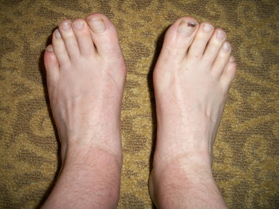 Pay Now Live Later: Air Travel Swollen Feet and Bad Food ...