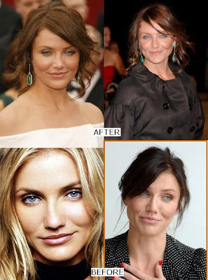 Cameron Diaz Nose Job (Before & After)