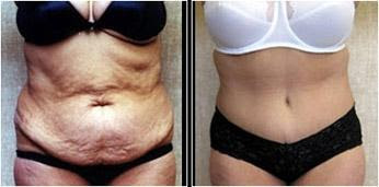 serious tummy tuck graphic