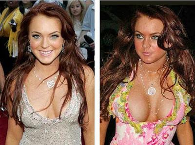 New day. Celebrity boob implants