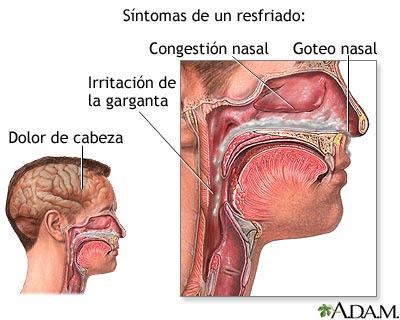 Cncer de laringe causado por humo del cigarro - SyM