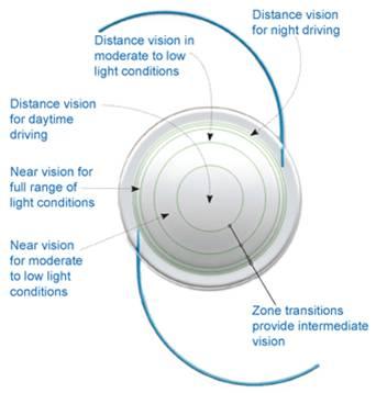 7b629798fd ... que los pacientes con cataratas e hiperopía tengan una mayor  independencia de los anteojos, mucho más que con las lentes intraoculares  monofocales.