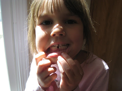 how to get a very loose tooth out