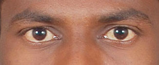 sellrajesh-eye.jpg