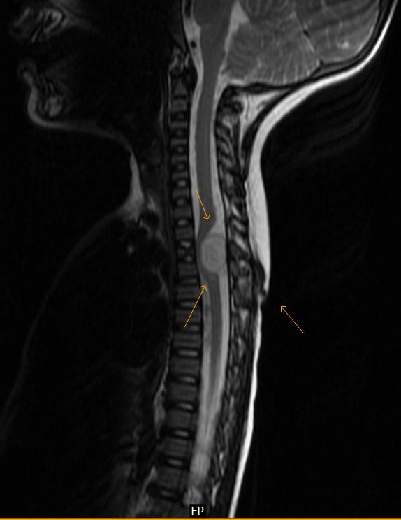 Dorsal Dermal Sinus with Epidural Abscess-MRI - Sumer's