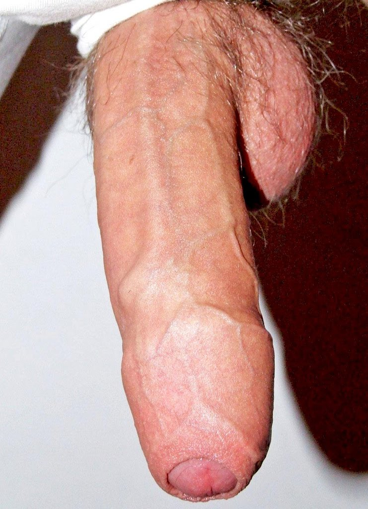 With Uncut cock
