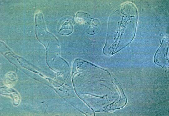 Micrograph of certain plant cells growing in test tubes: size 100 mm milliseconds